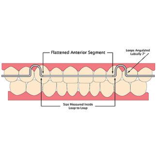 Centric Orthodontics Flat Bow Retainer Wire