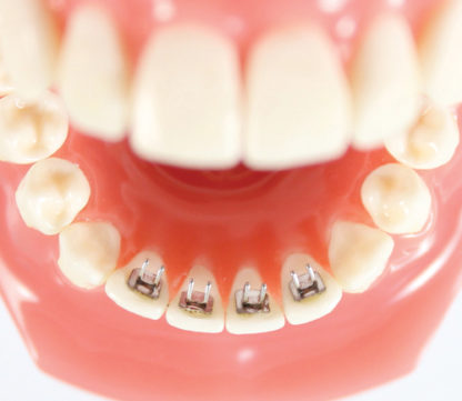 Centric Orthodontic Tongue Trainger