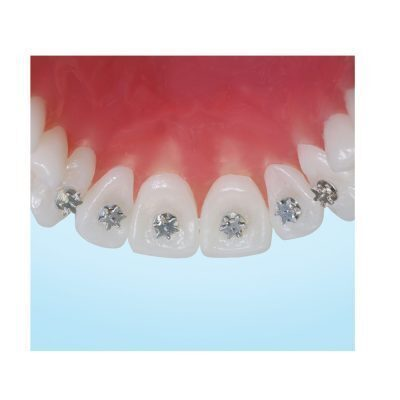 Centric Orthodontics TONGUE TRAINERS